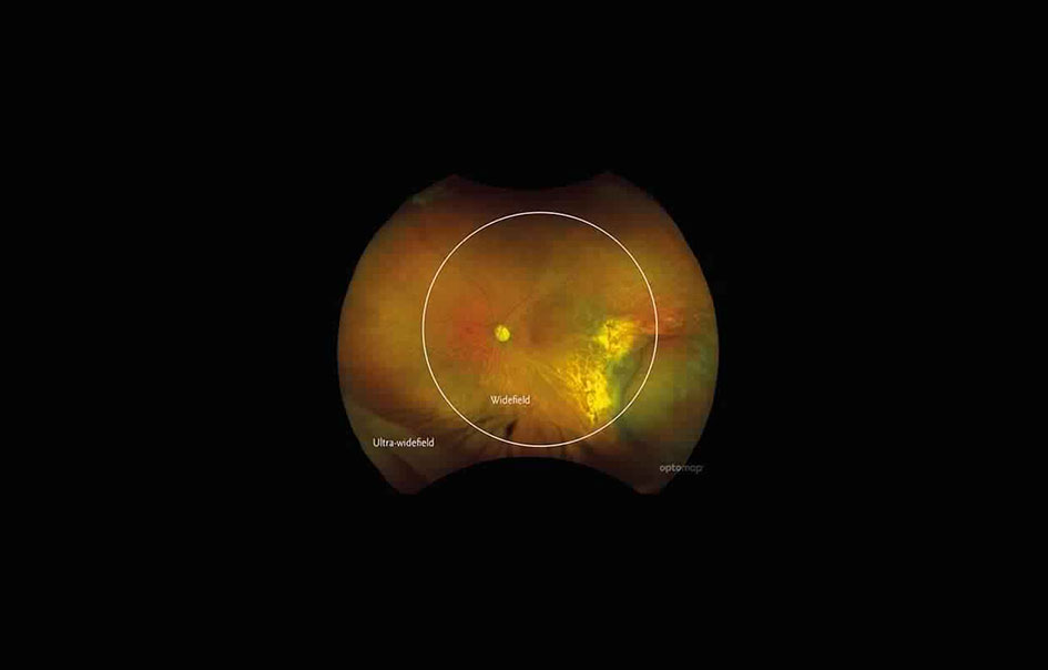 Retinal Imaging And Scanning